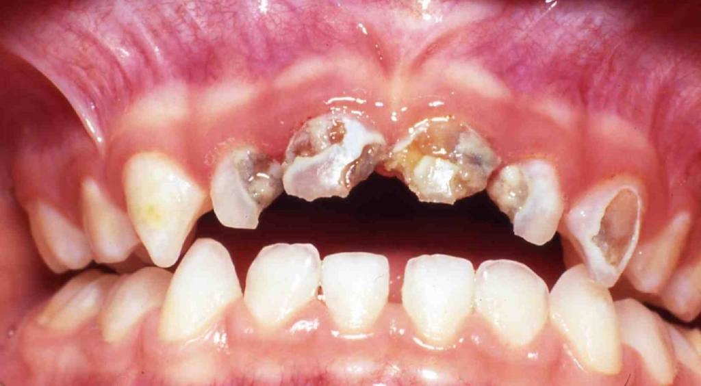 how sugar affects your teeth causing teeth cavities and teeth decay
