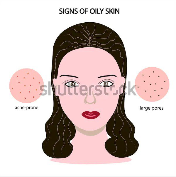 Signs of oily skin