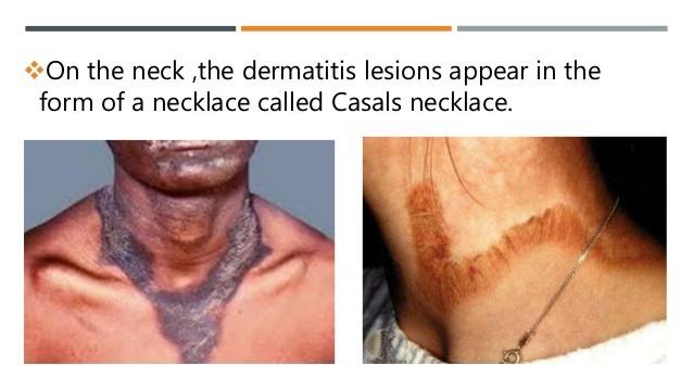 pellagra on the neck region