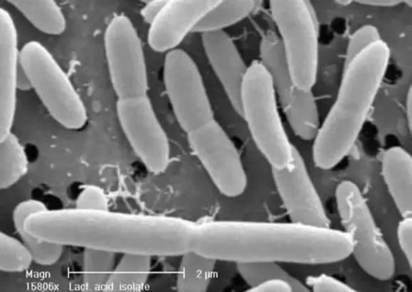 Lactobacillus acidophilus seen using microscope