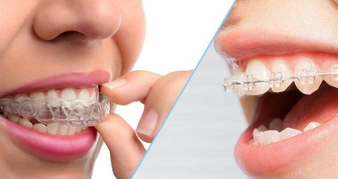 invisalign and clear braces