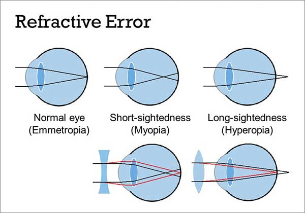 Refractive Errors are common eye diseases