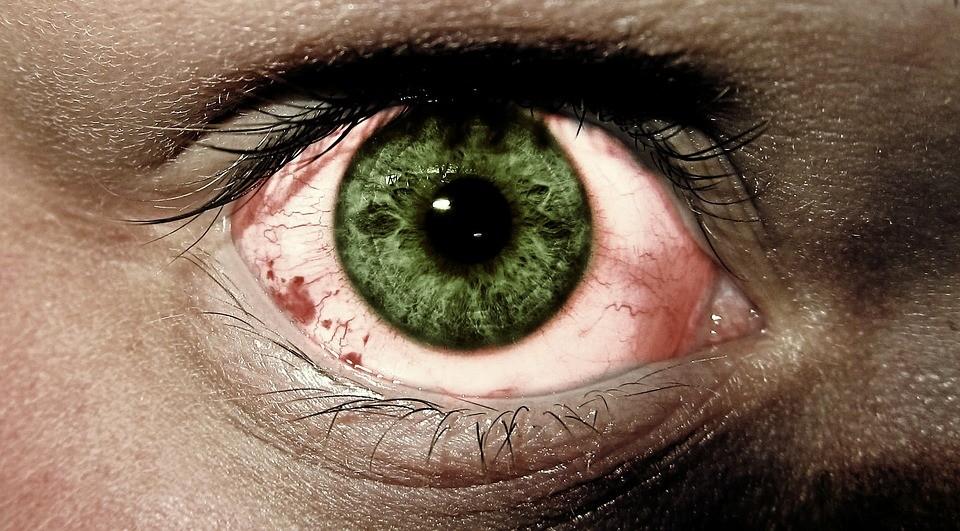 common eye diseases