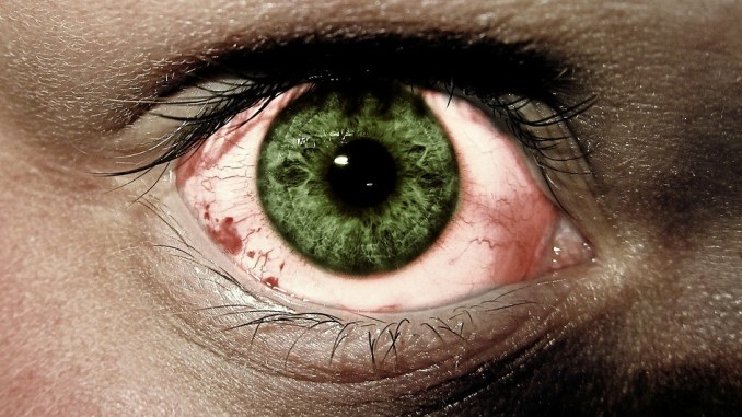 common eye diseases