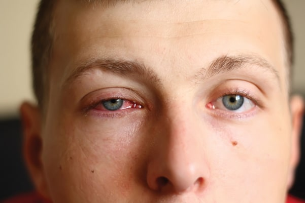 conjunctivitis or pink eye