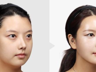 buccal fat reduction surgery