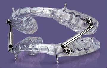 Mandibular Advancement Device for sleep apnea and snoring