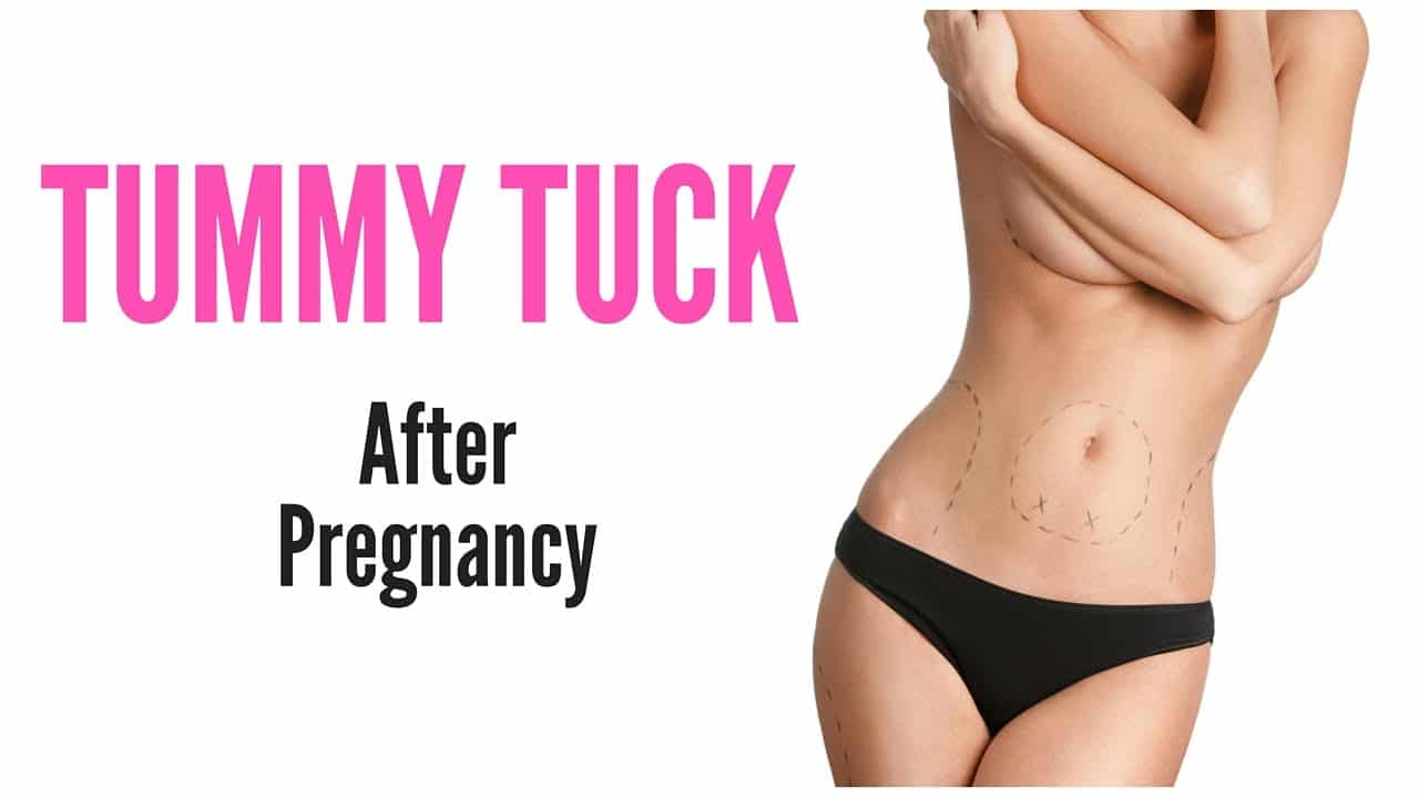 Tummy tuck after pregnancy