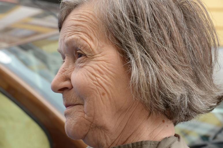 Sleep wrinkles causes skin aging