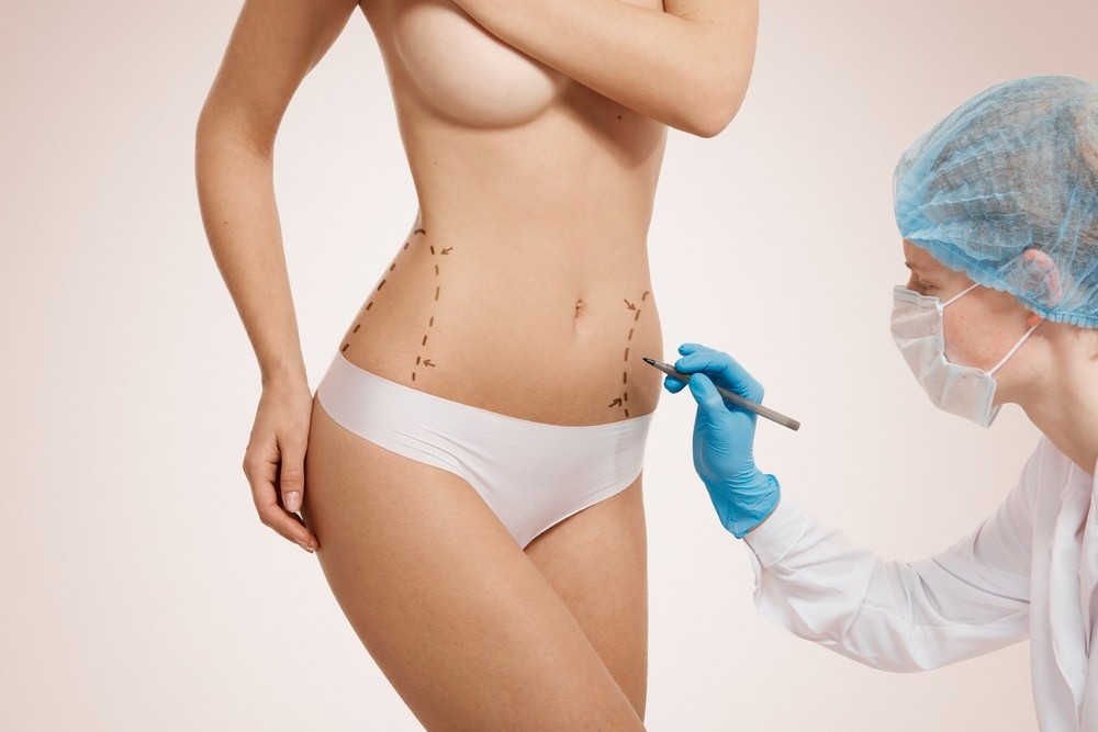 Best body cosmetic surgery for you