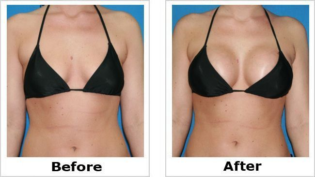 breast augmentation in breast cosmetic surgery
