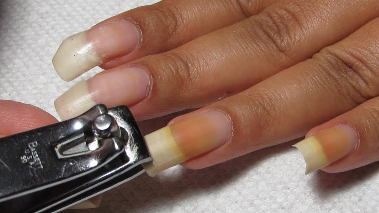 how to stop your nail from growing crooked