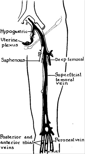 Ligation of the Inferior Vena Cava in the Prevention and