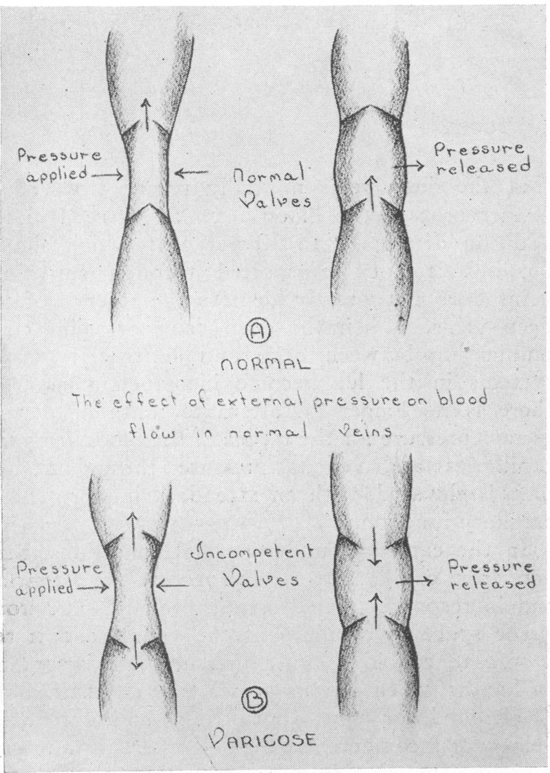 hight resolution of the effect of external pressure on blood flow in varicose veins