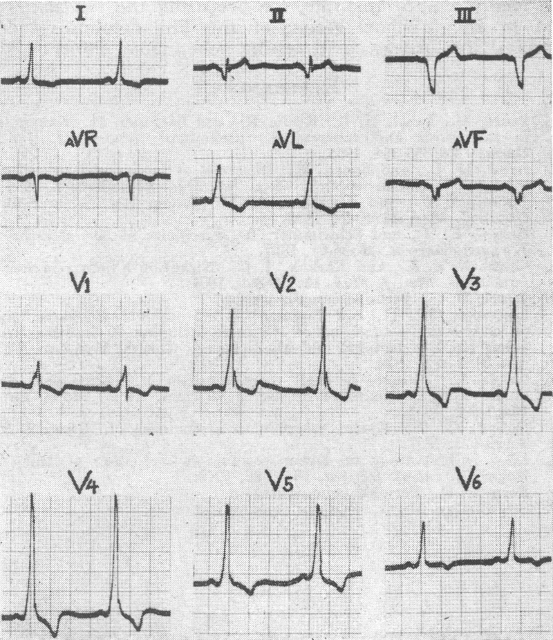 Electrocardiographic Criteria in the Differential