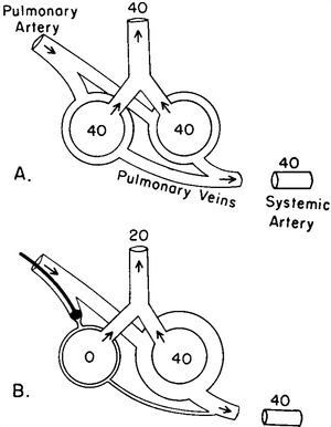 A Physiologic Approach to the Diagnosis of Acute Pulmonary