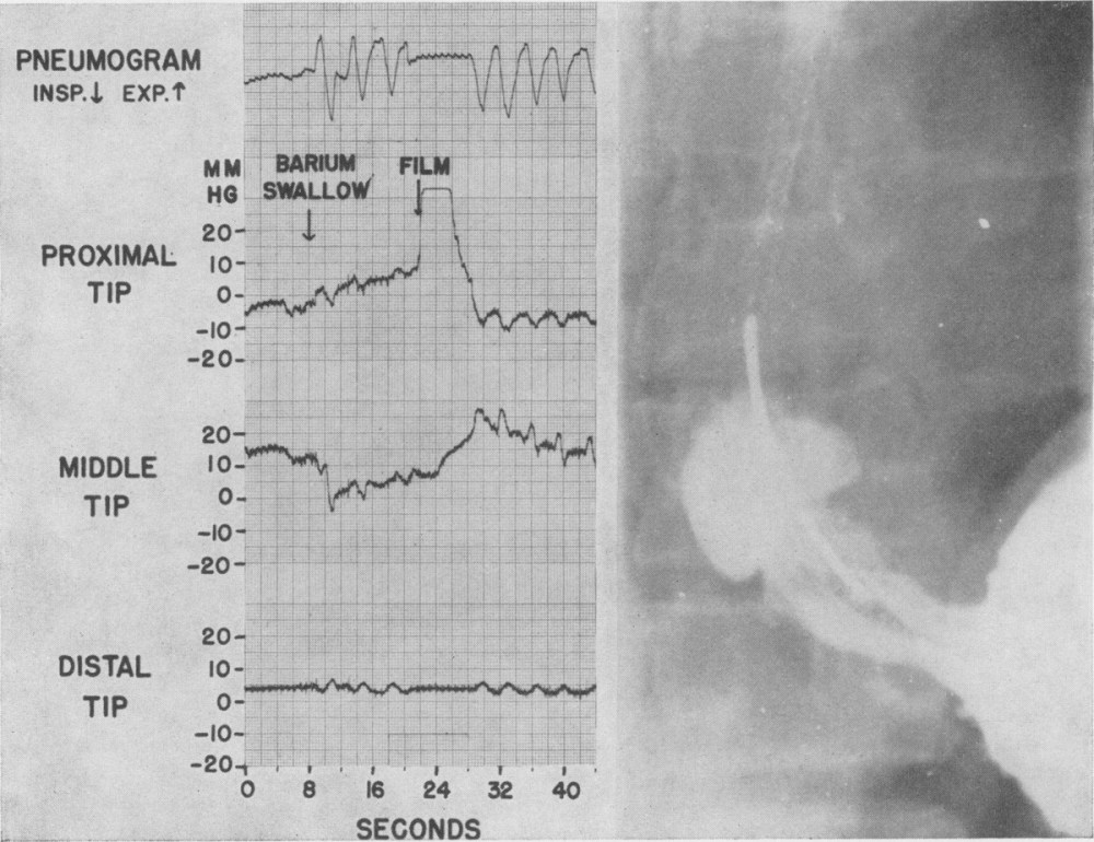 medium resolution of figure 2 middle recording tip lying in a zone of elevated resting pressure with the characteristics of the lower esophageal sphincter