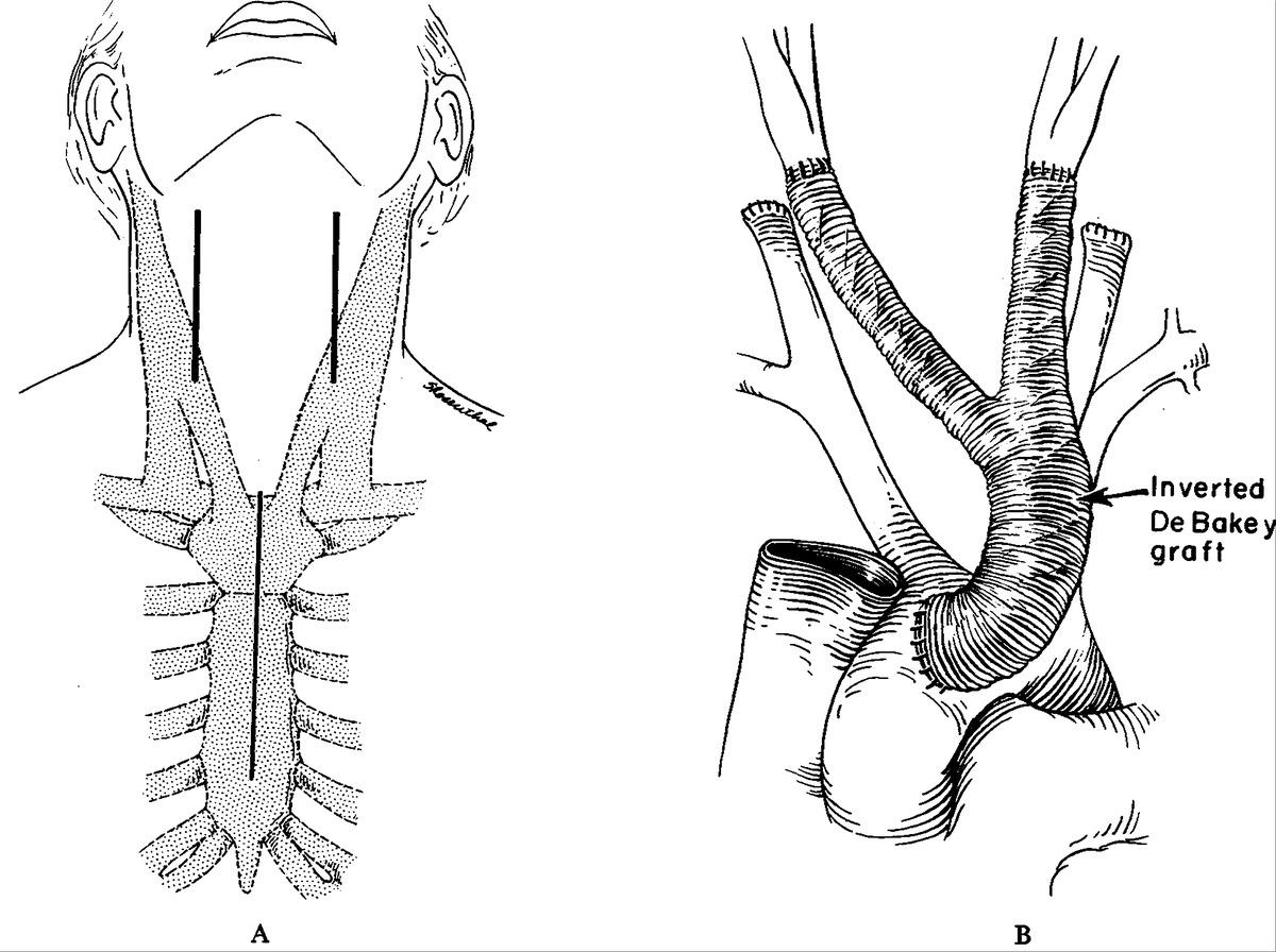 Surgical Treatment Of Pulseless Takayasu S Disease