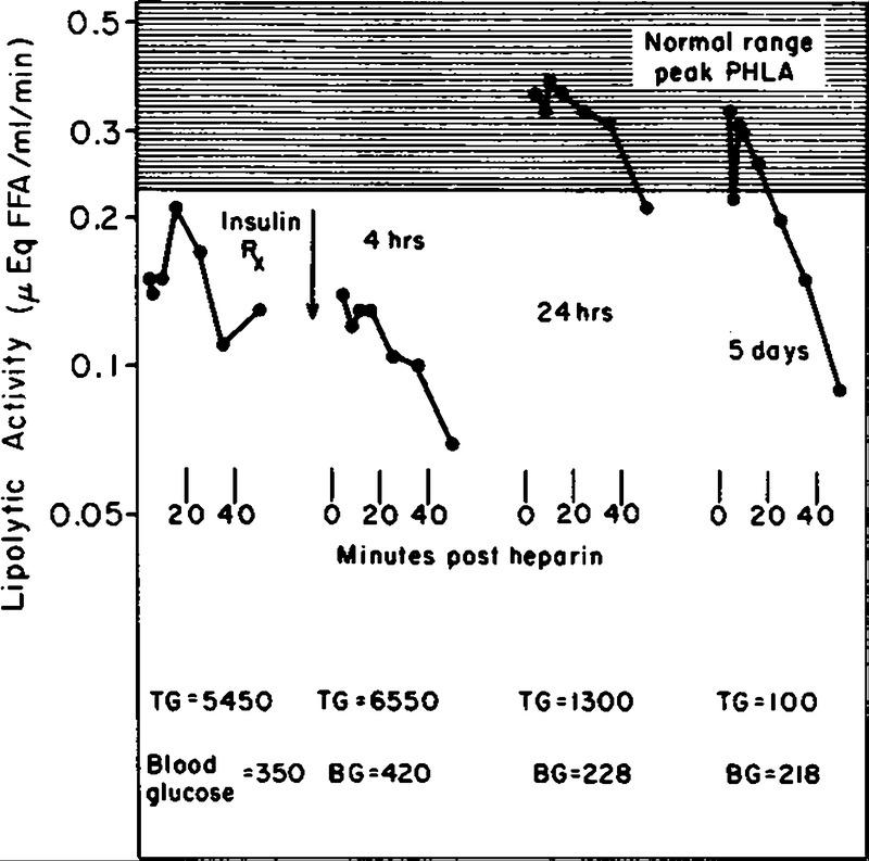Diabetic Lipemia — A Form of Acquired Fat-Induced Lipemia