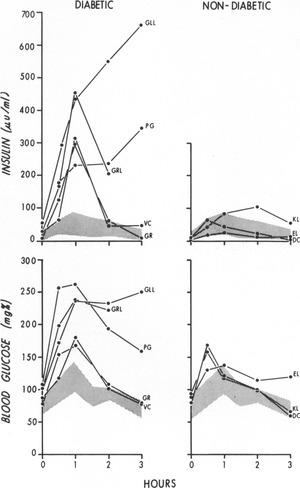 An Unusual Form of Diabetes Mellitus in Ataxia