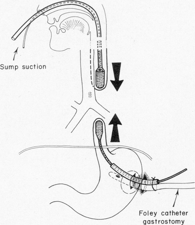 Electromagnetic Bougienage to Lengthen Esophageal Segments