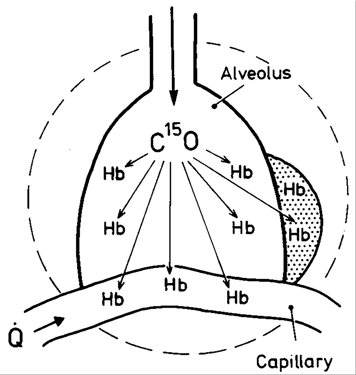 Detection Of Intrapulmonary Hemorrhage With Carbon