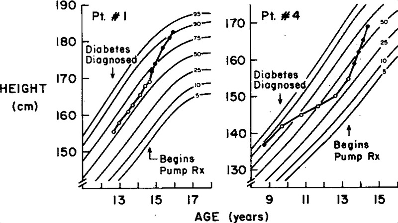 Insulin-Infusion-Pump Treatment of Diabetes — Influence of