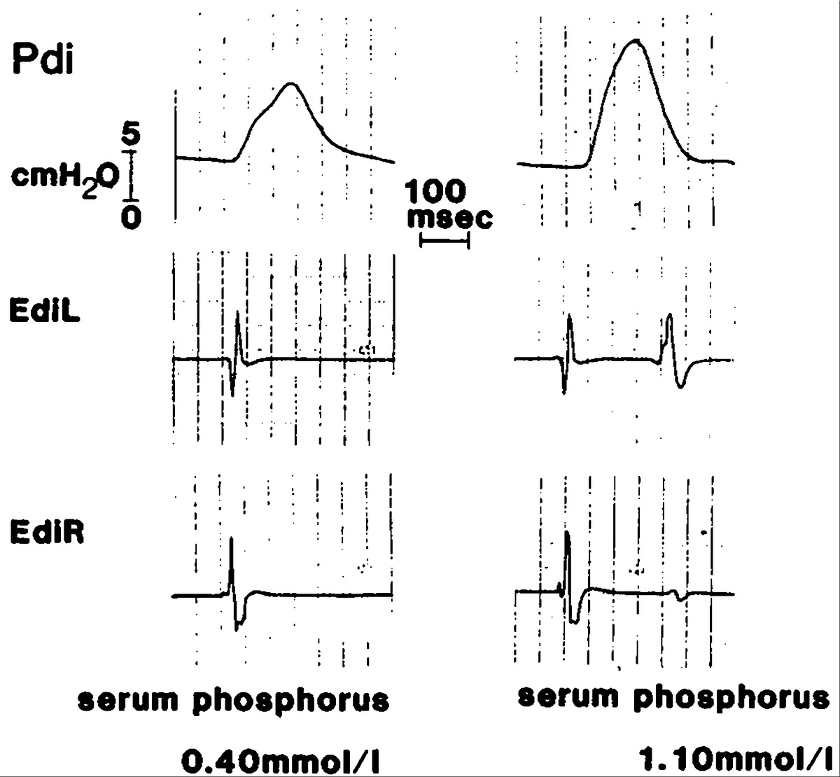 Effect of Hypophosphatemia on Diaphragmatic Contractility