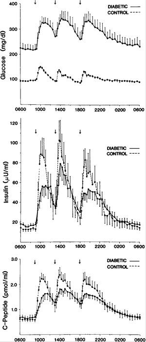 Abnormal Patterns of Insulin Secretion in Non-Insulin