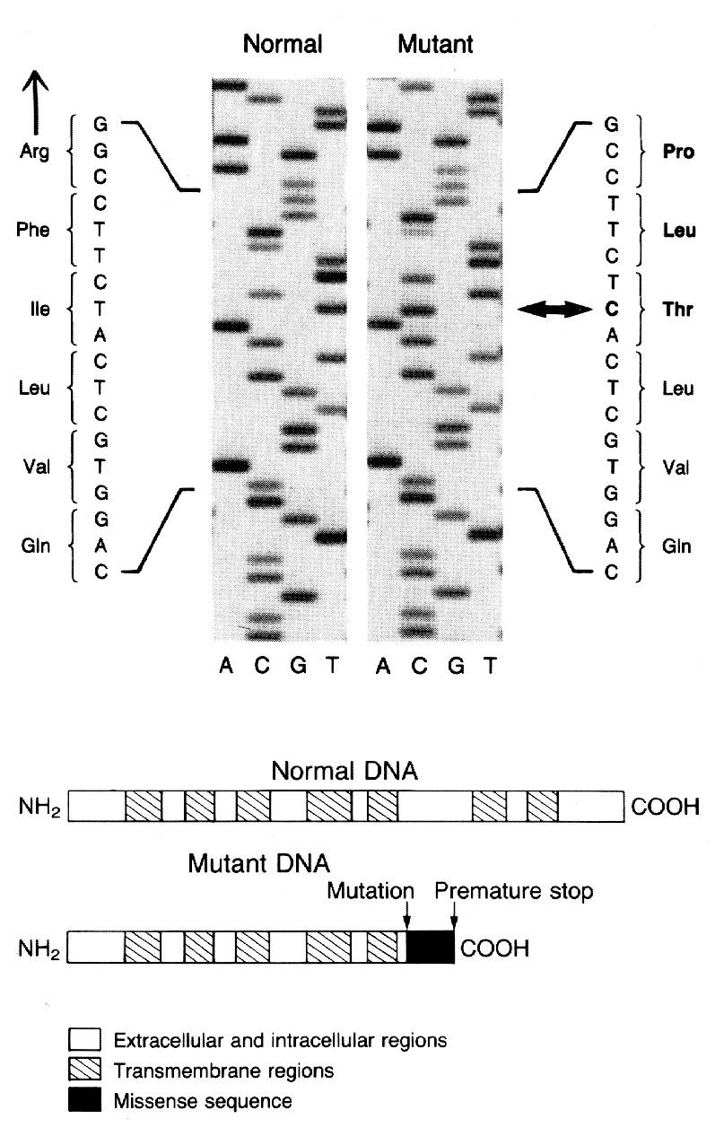 A Mutation in the Vasopressin V2-Receptor Gene in a