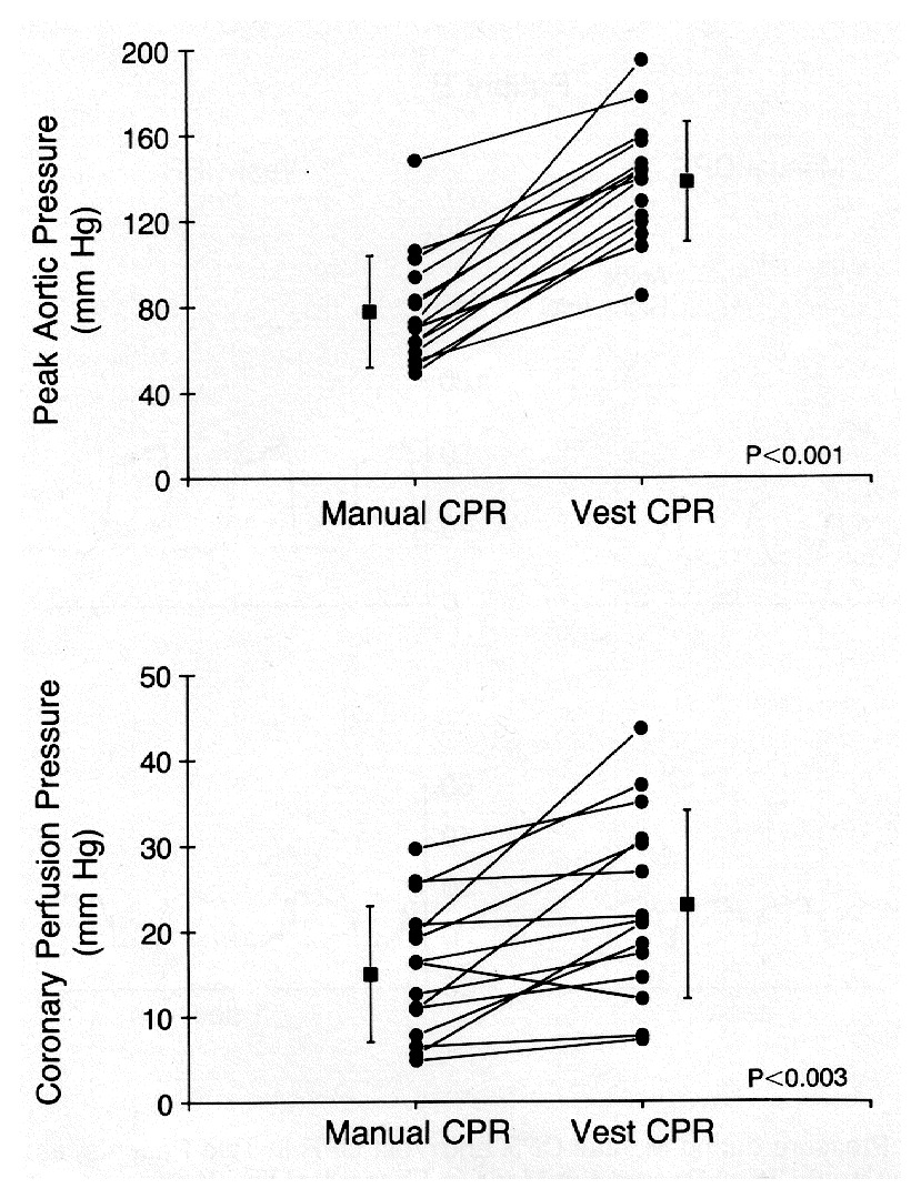 A Preliminary Study of Cardiopulmonary Resuscitation by