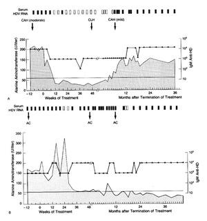 Treatment of Chronic Hepatitis D with Interferon Alfa-2a