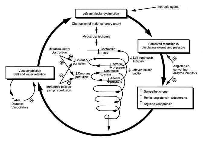 cardiogenic shock pathophysiology diagram