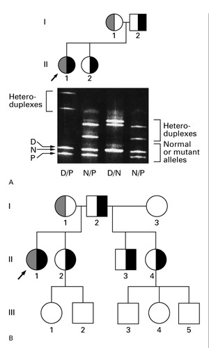 Delayed Puberty and Hypogonadism Caused by Mutations in