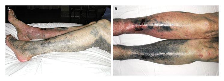 Minocycline-Induced Hyperpigmentation | NEJM