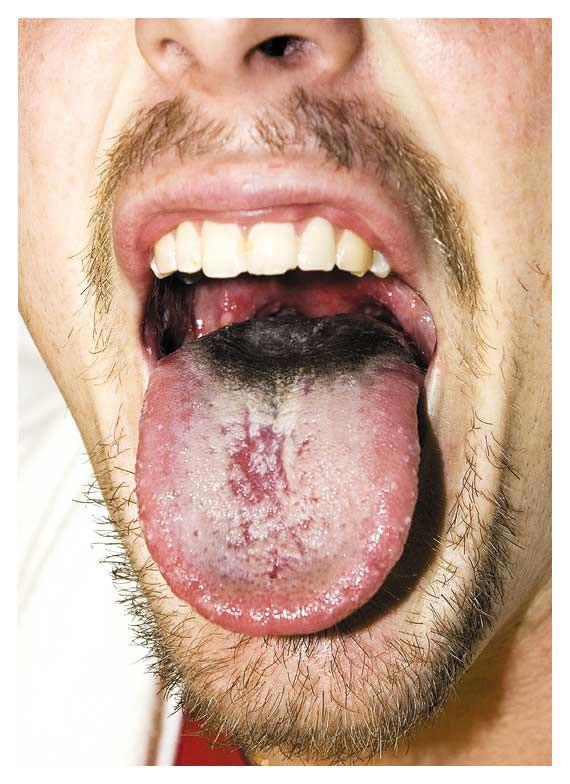 Black Hairy Tongue Disease