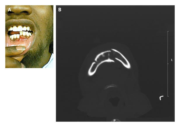 Open Mandibular Fracture with Malocclusion  NEJM