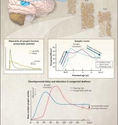 figure 2 development of the auditory cortex  [ 800 x 1087 Pixel ]
