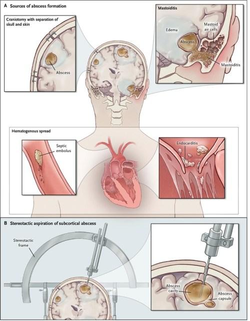 small resolution of brain abscess