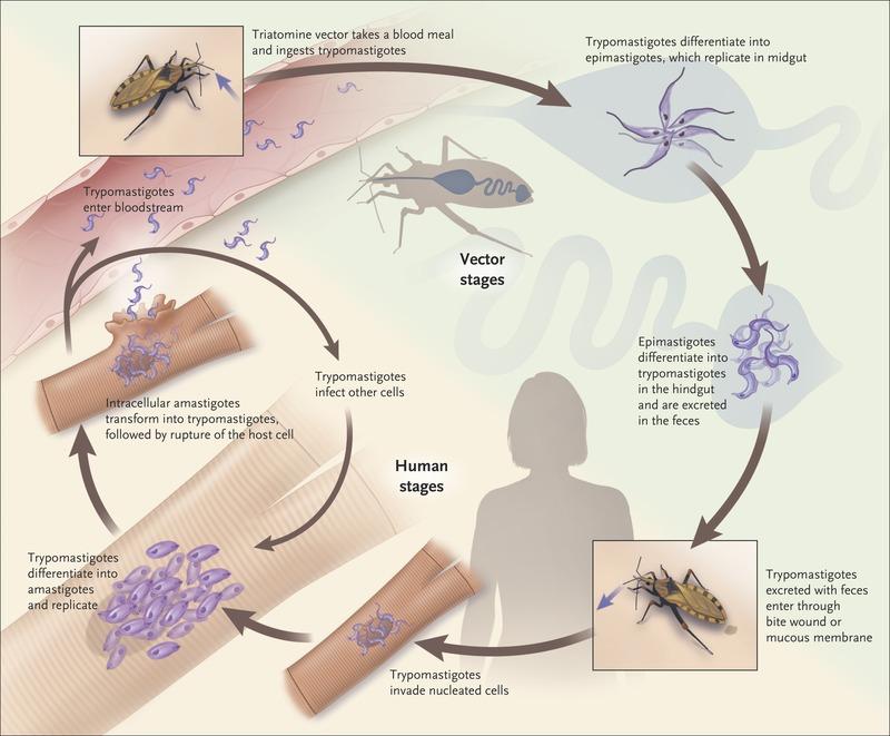 Resultado de imagen para Chagas disease