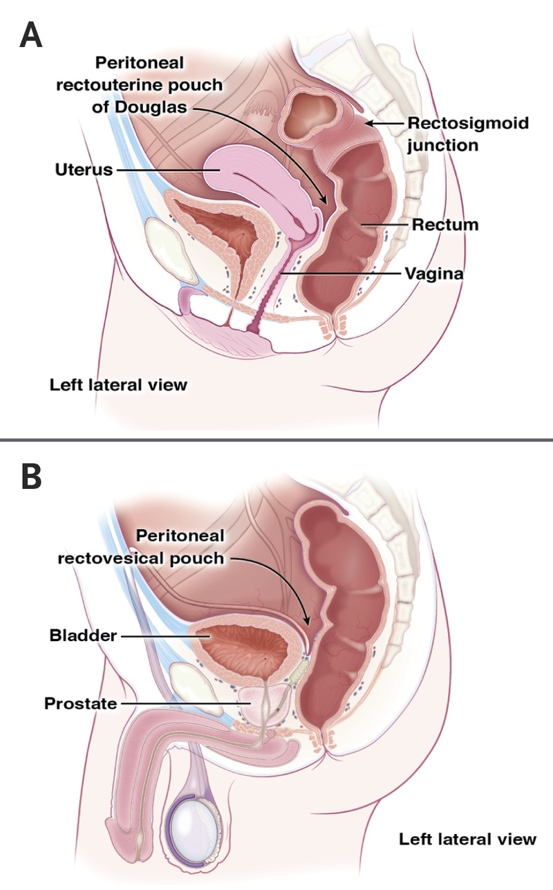 medium resolution of anatomical structures anterior to the rectum in women and men