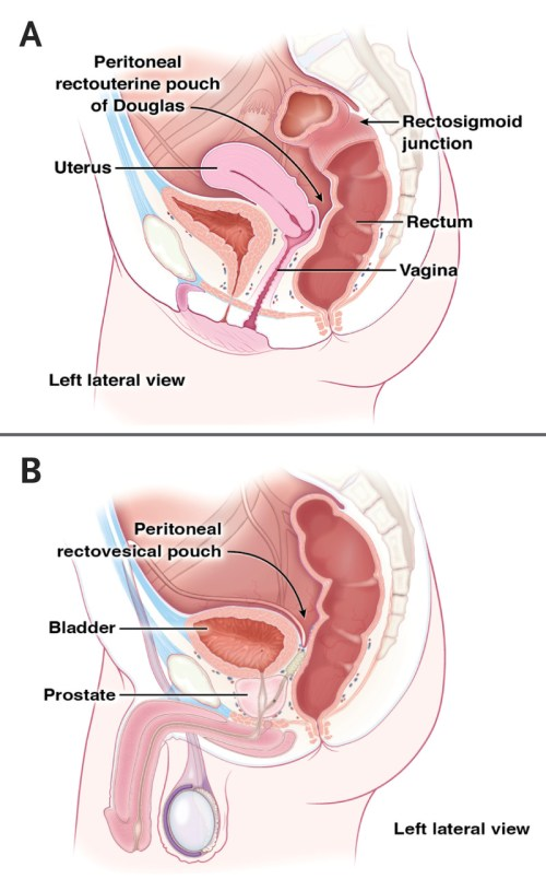 small resolution of anatomical structures anterior to the rectum in women and men
