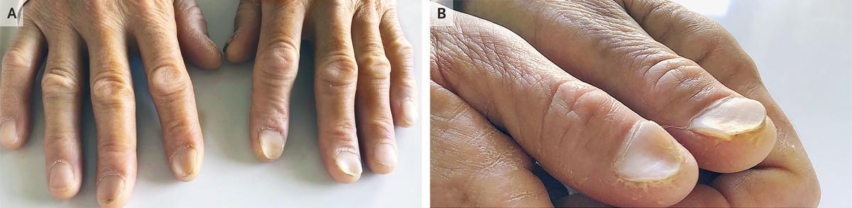 Koilonychia In Iron Deficiency Anemia Nejm