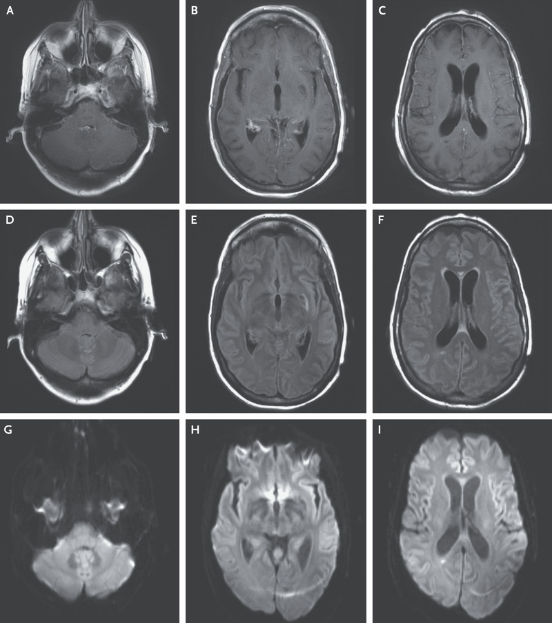 Case 31-2019: A 45-Year-Old Woman with Headache and Somnolence   NEJM