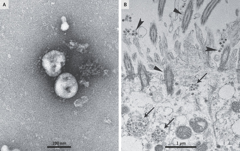 A Novel Coronavirus from Patients with Pneumonia in China, 2019 | NEJM