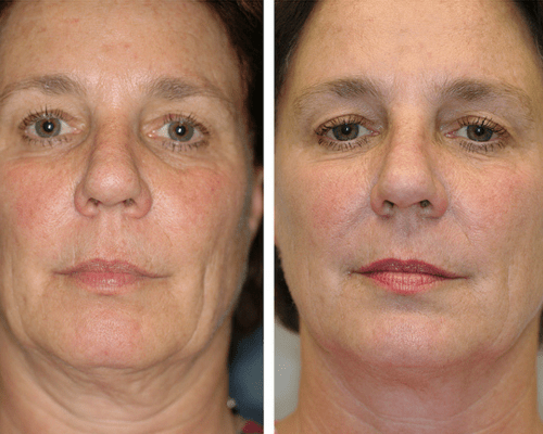 Skin tightening and rejuvenation.