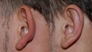 διόρθωση πεταχτών αυτιών