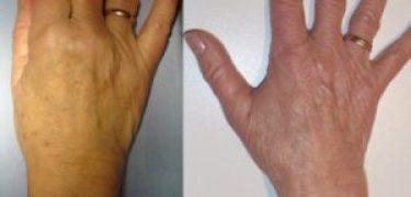 κηλίδες χεριών,πανάδες, laser,μαύρα στίγματα χέρια