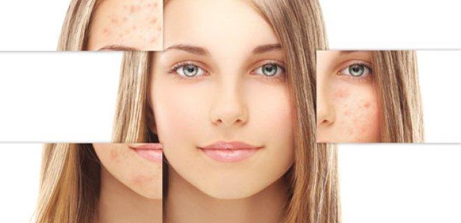 Skin Benefits Of Chamomile Oil