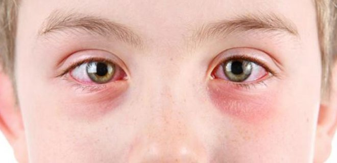 alerjik konjonktivit 001 - What Is Bacterial Conjunctivitis?